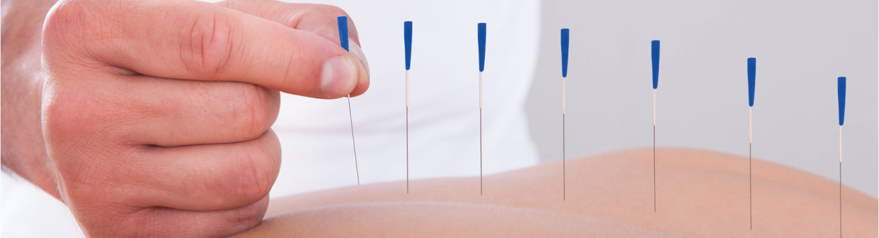 acupuntura en Alicante